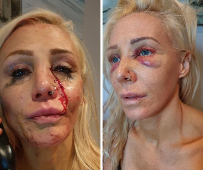 Battered - Anja Housden-Brooks' face was left like this in attack